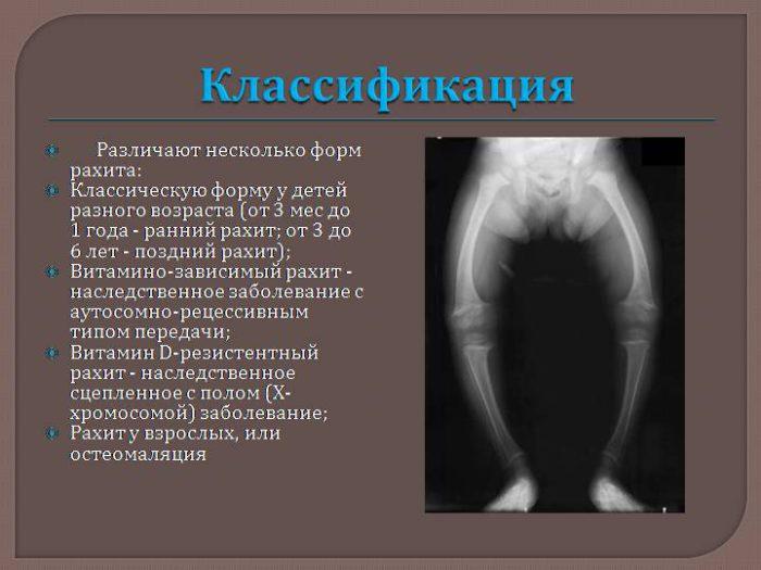 степени протекания рахита у грудничков